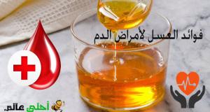 فوائد العسل لأمراض الدم, العسل, فوائد العسل,العسل للدم, علاج أمراض الدم, النحل, موقع نحلة , احلى عالم, عسل, الدم والعسل, فوائد العسل للقلب, العسل للقلب, العسل لمرض الدم