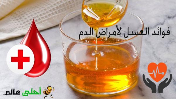فوائد العسل لأمراض الدم