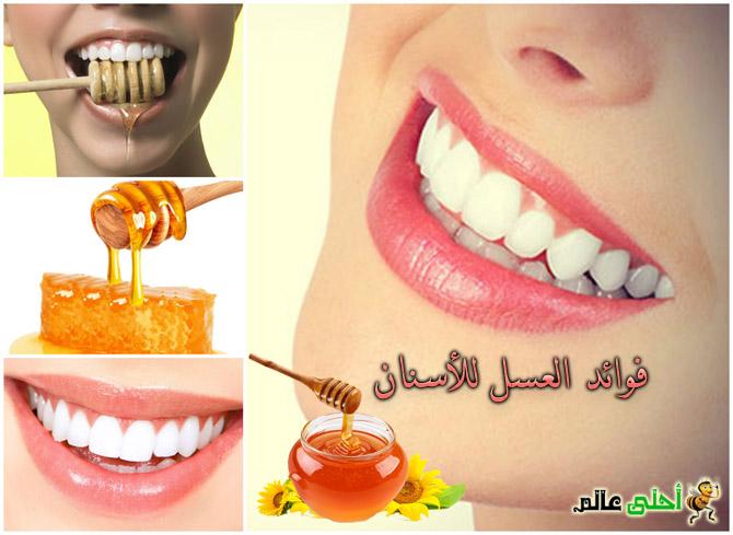 فوائد العسل للأسنان يقويها يبيضها ويحميها من التسوس