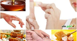 فوائد العسل للجلد , العسل للجلد, العسل للبشرة, علاج الجلد بالعسل, العسل للجروح, العسل للقروح, العسل للحروق , العسل مطهر , العسل معقم , العسل مرمم, عسل, العسل , فوائد العسل. احلى عالم, موقع نحلة,